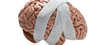 bandaged brain graphic